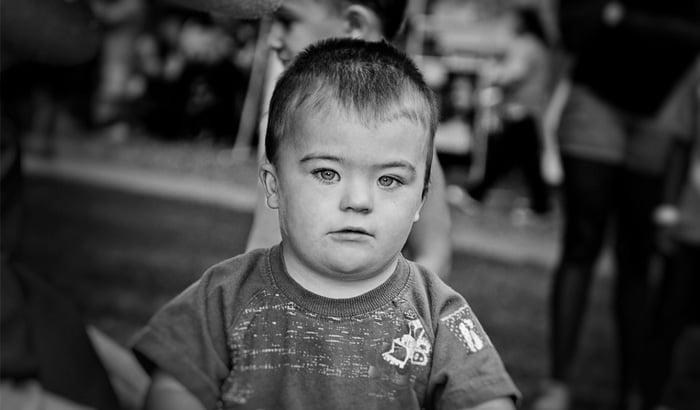 Psico Ayuda Infantil - Los niños con Síndrome de Down